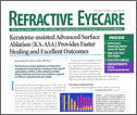 Keratome-assisted ASA